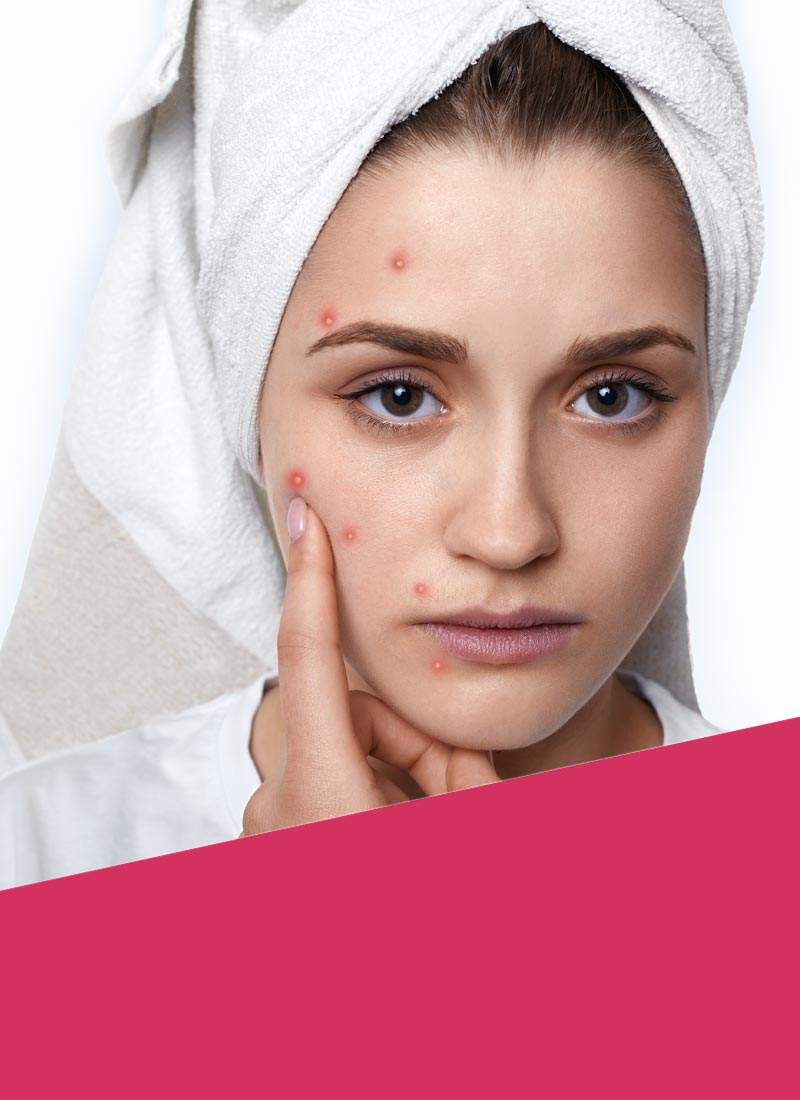 Young woman suffering from acne on her face Rewonder