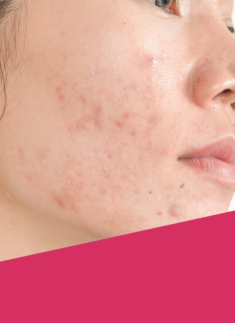 Hyperpigmentation and acne scars on the cheek of a young woman