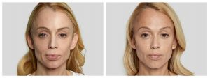 Anna Sculptra Before and After Photo Rewonder