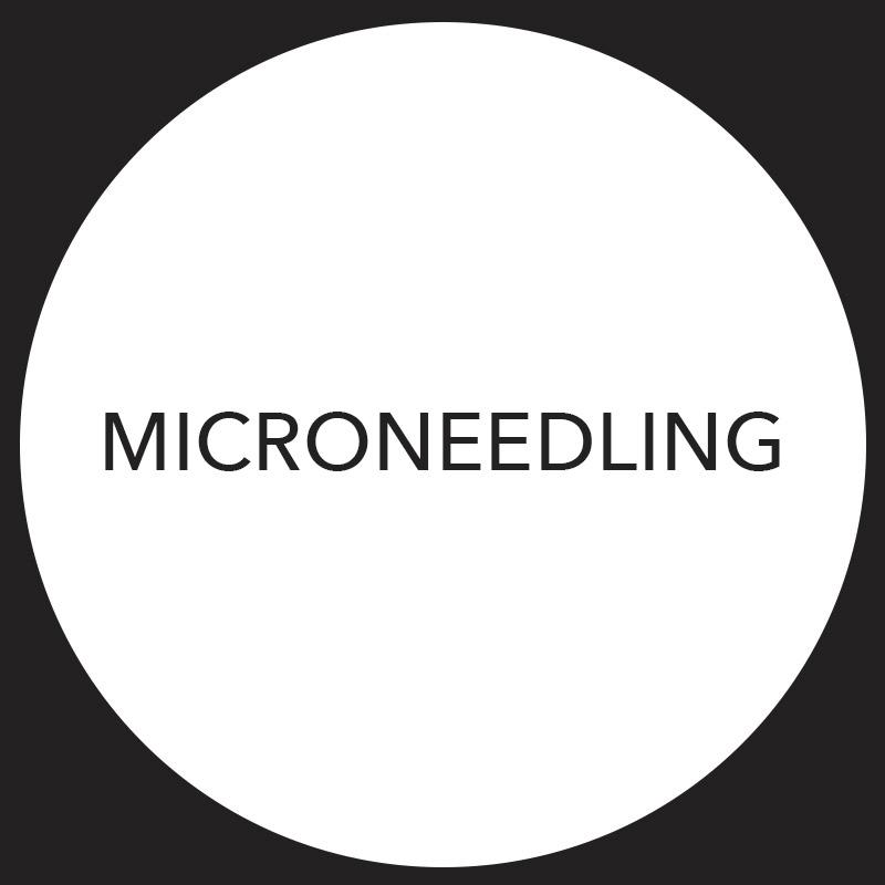 Microneedling at ReWonder-Clinics